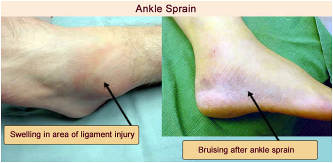 AS1 Ankle Sprain & Fractures