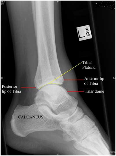 As3 Ankle Sprain & Fractures