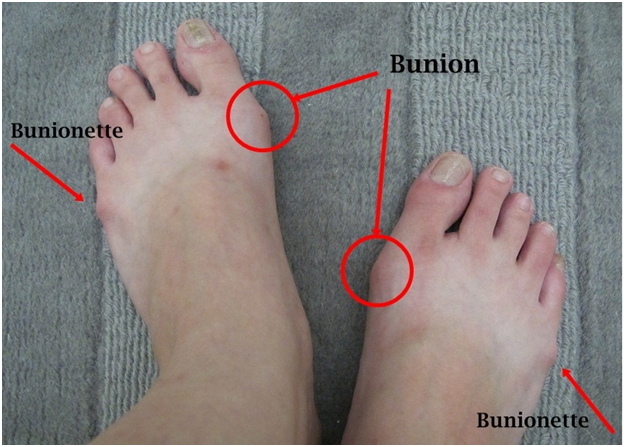 how to make bunions smaller