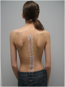 CS2 225x300 Child Scoliosis
