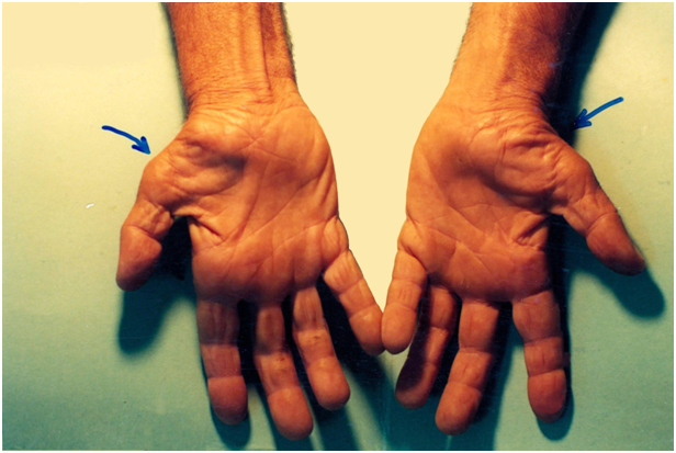 CTS1 Carpal Tunnel Syndrome