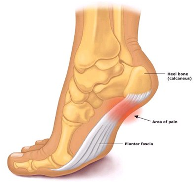 FAP1 Foot Arch Pain