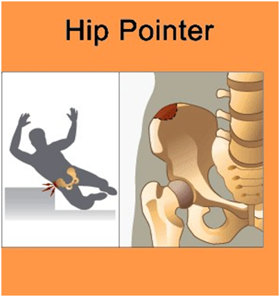 HP2 Hip Pointer