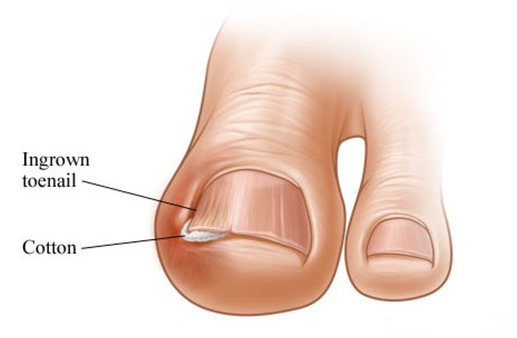 IT1 Ingrown Toenail