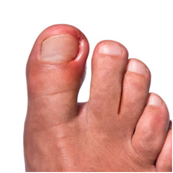 It2 Ingrown Toenail