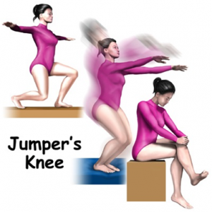 JK2 300x300 Jumper's Knee