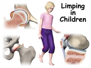LC1 300x225 Limping in Children