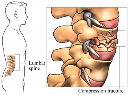 LTSF1 Lumbar & Thoracic Spine Fracture