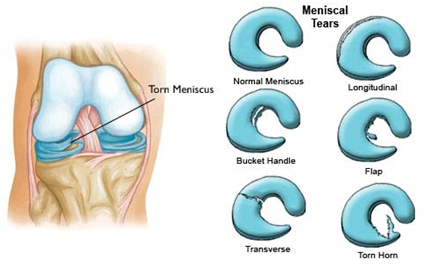MR1 Meniscus Repair