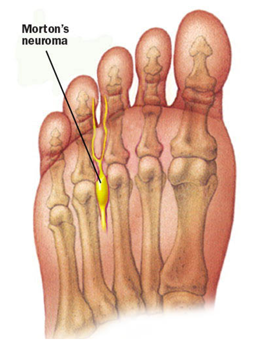 MT1 Morton's Neuroma