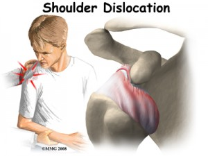 SD 11 300x225 Shoulder Dislocation