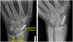 SF2 300x176 Scaphoid Fracture of The Wrist