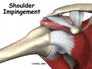 SI 11 300x225 Shoulder Impingement