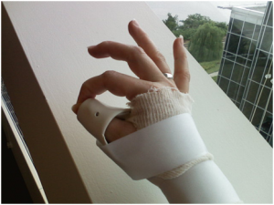 TF2 300x225 Thumb Fracture