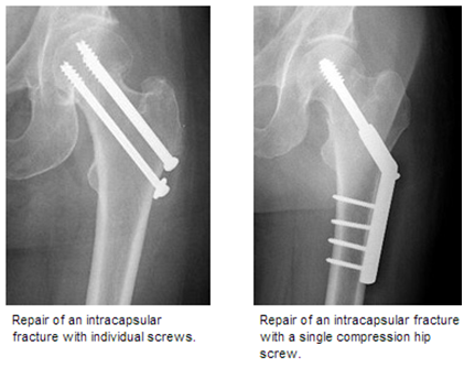 hf3 Hip Fracture