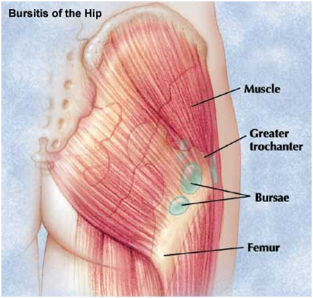 hip bursitis Hip Bursitis