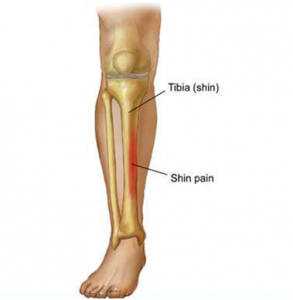 sphi 1 293x300 Shin Splints